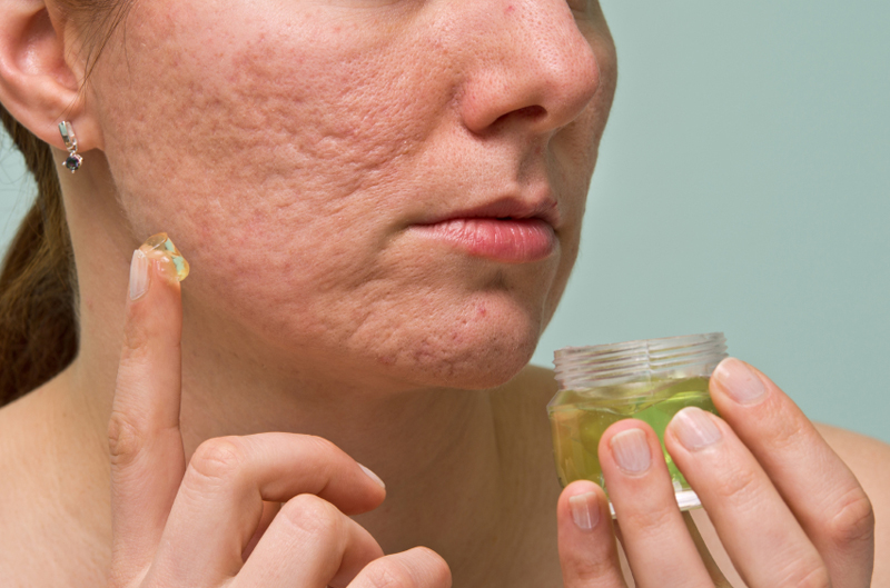 cure acne scars