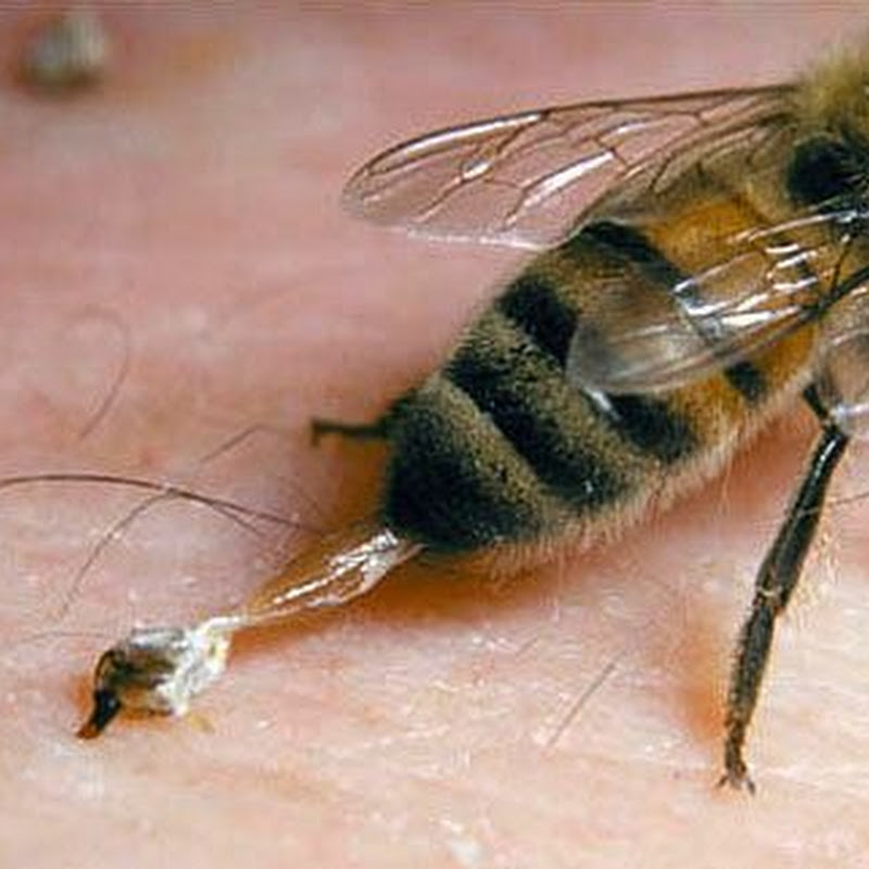 how to make a bee sting
