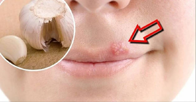 cure herpes naturally