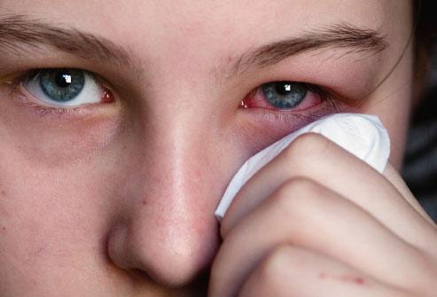 cure pink eye