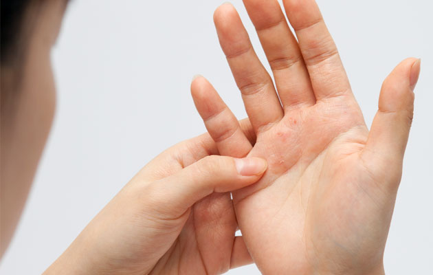 cure psoriasis