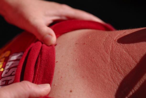 cure sunburn