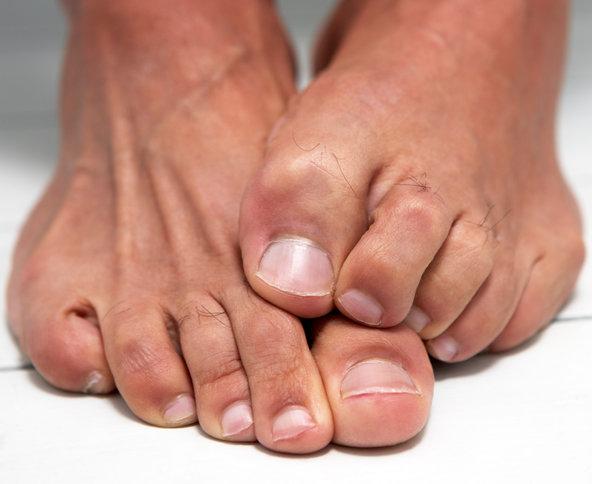 cure toenail fungus
