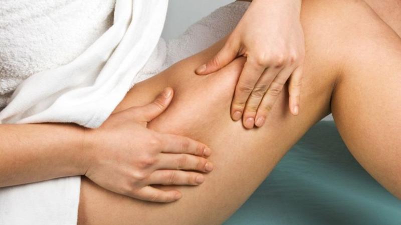 prevent varicose veins